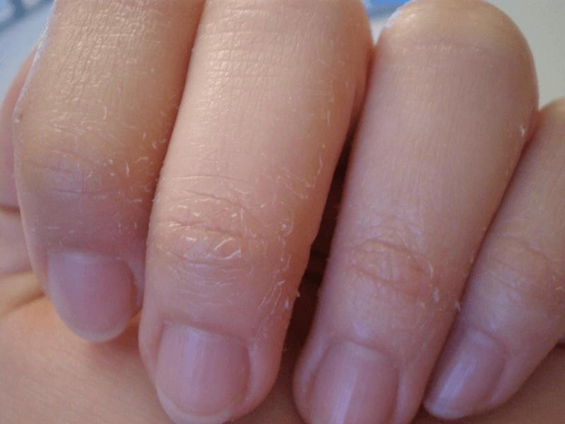 облезает кожа на пальцах рук причины