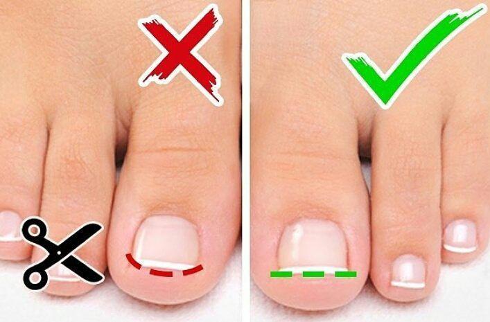 как правильно стричь ногти на ногах фото