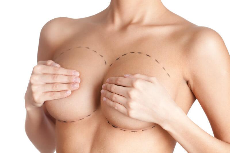 увеличить грудь операция